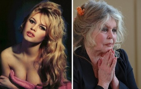 Brigitte Bardot In Her 20s, & More recently: If That's Not A Disease, What Is? Aging Is A Disease, Like Elephantiasis