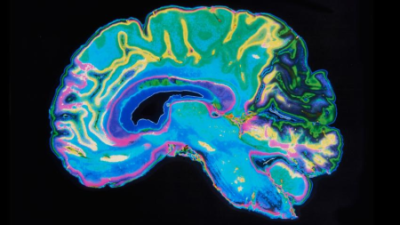 Researchers have identified several structural differences between the brains of men and women, but they form changing mosaics from individual to individual, making it impossible to tell the sex of an individual based solely on MRI images of the brain like the one above.